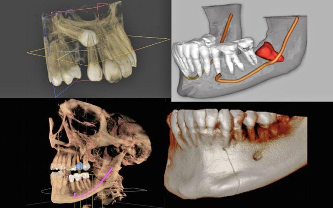 Curso CBCT Escáner Dental