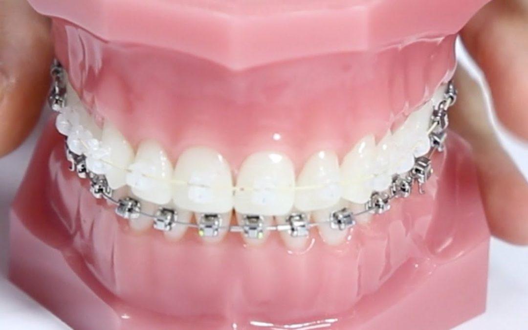 APLAZADO. Tratamiento ortodóncico en pacientes con periodontitis